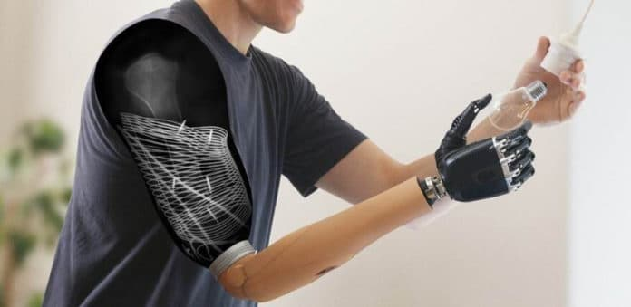 Prosthetics: for the first time, sensors have been implanted for wireless control of muscle signal transmission following nerve transfers