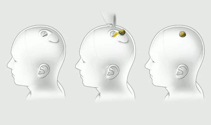 Elon Musk demonstrates Neuralink's brain-machine interface chip.
