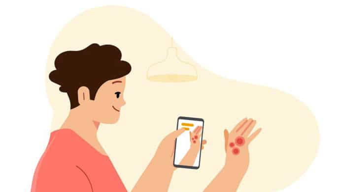 Google's AI-powered dermatology tool helps you diagnose skin conditions.