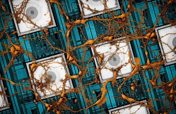 Image of rat neurons on CNEA (CMOS nanoelectrode array).